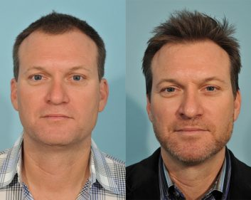 Hair Transplant In Ft Worth Colleyville Jesse E Smith Md Facs