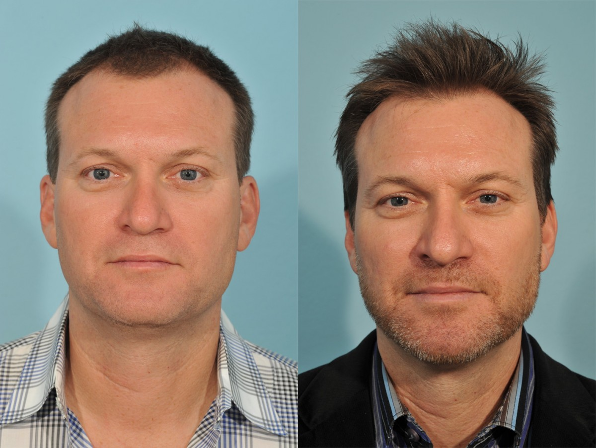 Hair Transplant Before & After 2 - Jesse E Smith, MD, FACS ... Will Arnett Hair Transplant Before And After