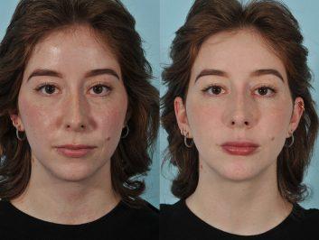 injectables-before-after-5ab