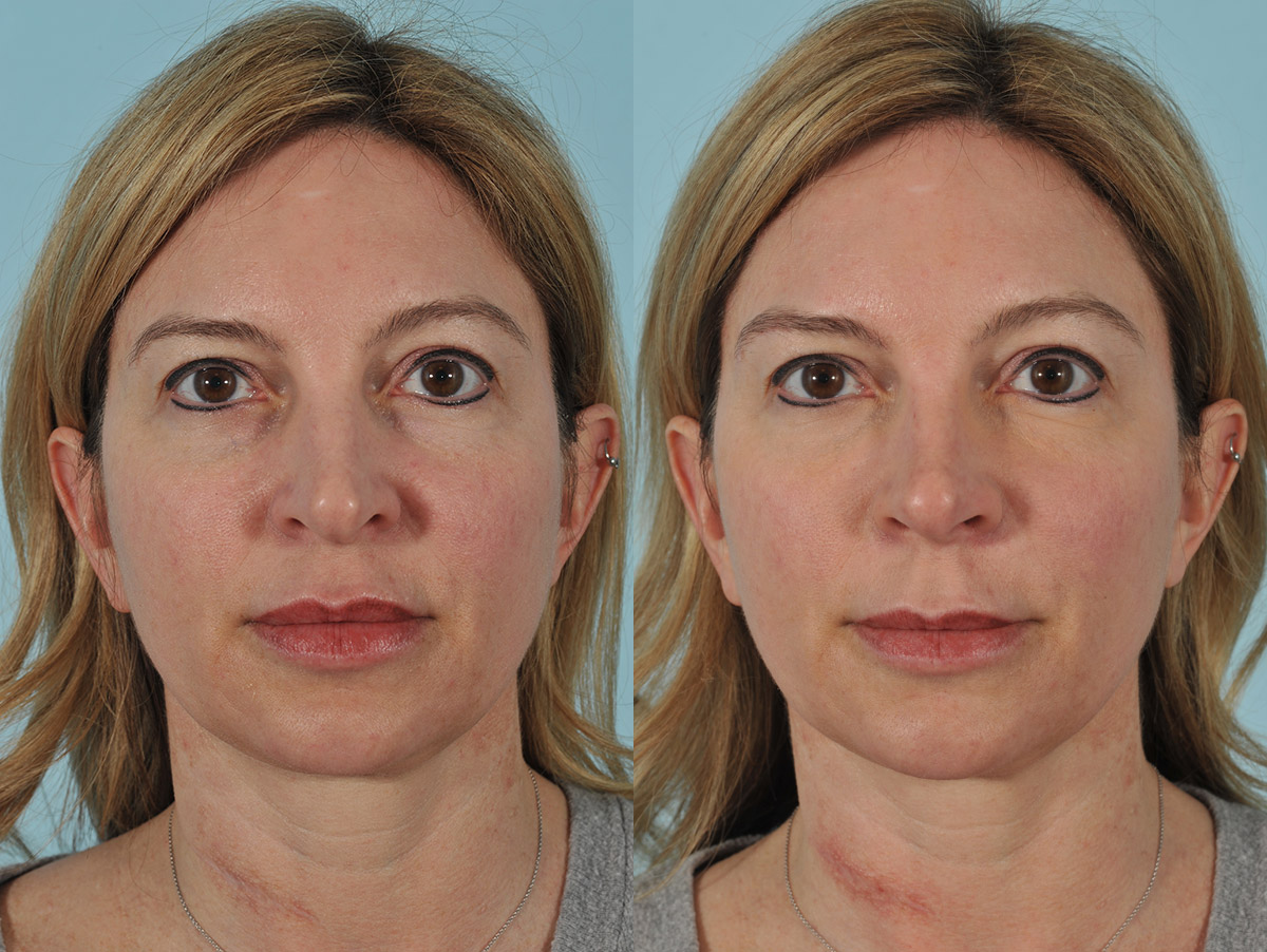 Injectables Before & After 6ab
