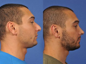 rhinoplasty-before-after-12cd