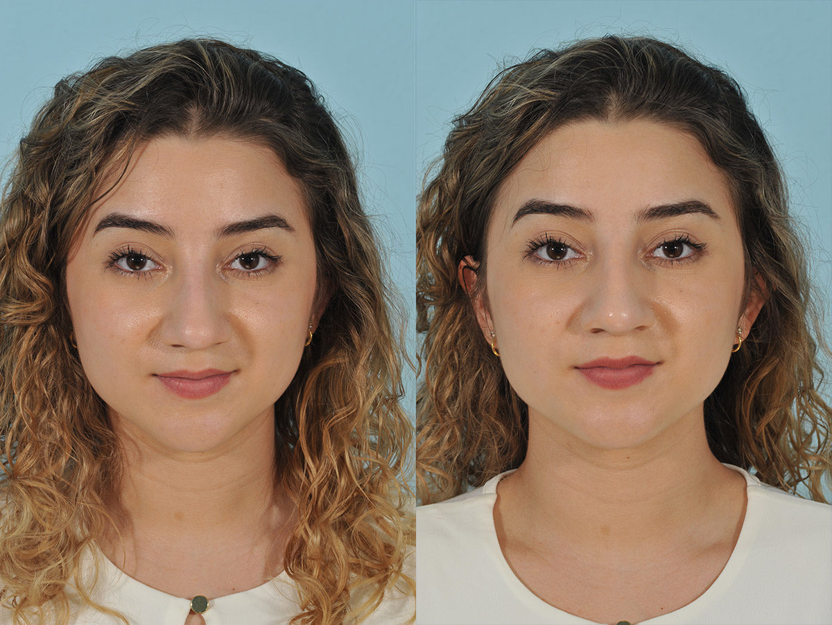 Injectables Before & After 9ab